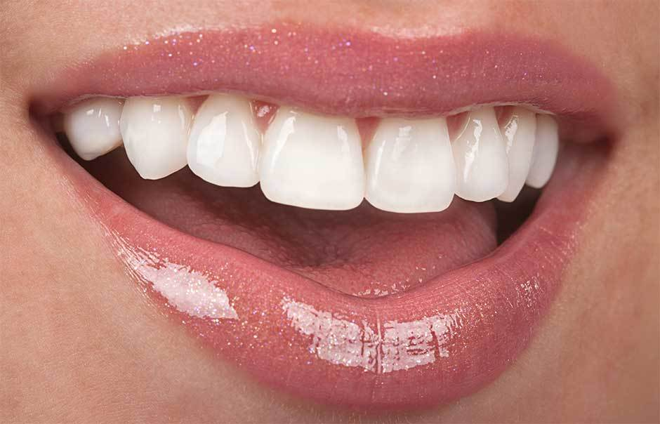 Cosmetic-Dentistry-Scarborough