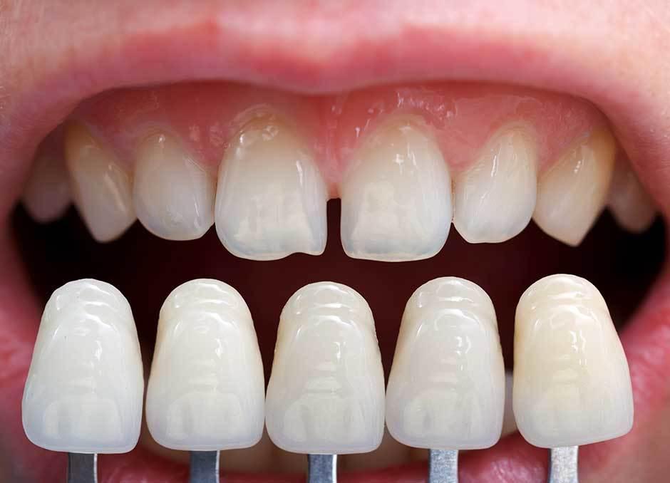 Porcelain Veneers | Dental Veneers in Scarborough - Havenview Dental