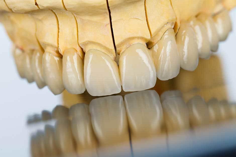 Dental-Bridges-Scarborough31